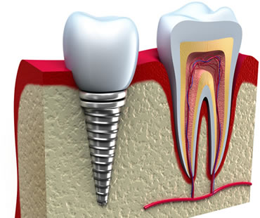 dental implants dentist in Bastrop