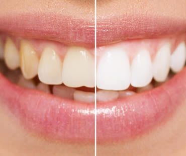 Teeth whitening Bastrop