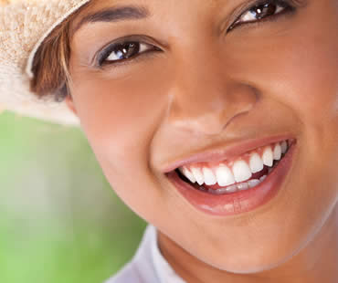 teeth-whitening-5