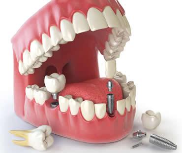 dental-implants-3